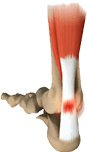 Achilles-Tendon-Disorders